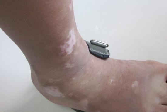脚上有白点,是肢端型白癜风吗