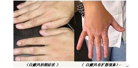 白癜风治疗(zhiliao)时期对生育有没有影响